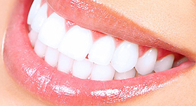 Teeth Whitening | Cannon Hill Smiles