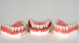 Mouthguards | Cannon Hill Smiles