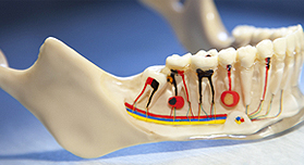 Root Canal Treatment | Cannon Hill Smiles